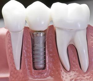 toothReplacementSide